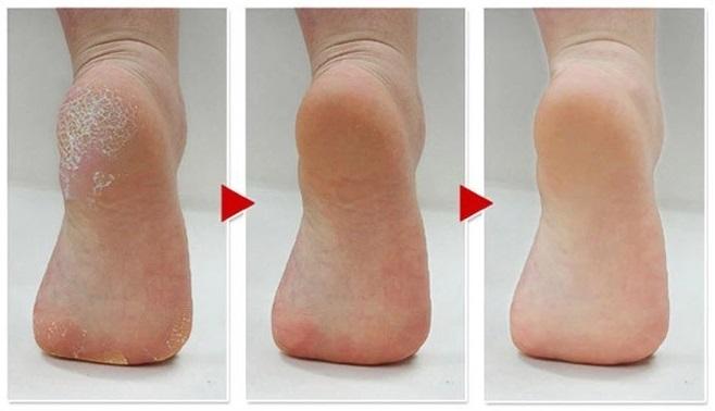 evolucion pies agrietados
